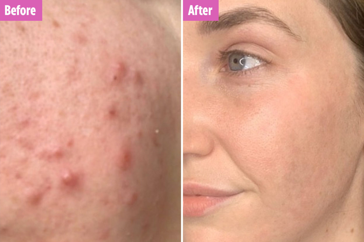 Woman who 'tried everything' for her cystic acne finally banishes it using 'miracle' £6 soap bar