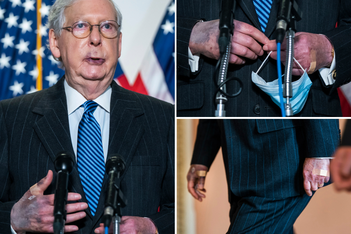 Why are people concerned about Mitch McConnell's discolored hands?